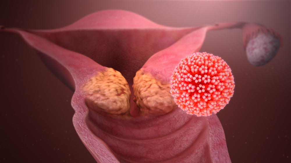 HPV_causing_cervical_cancer